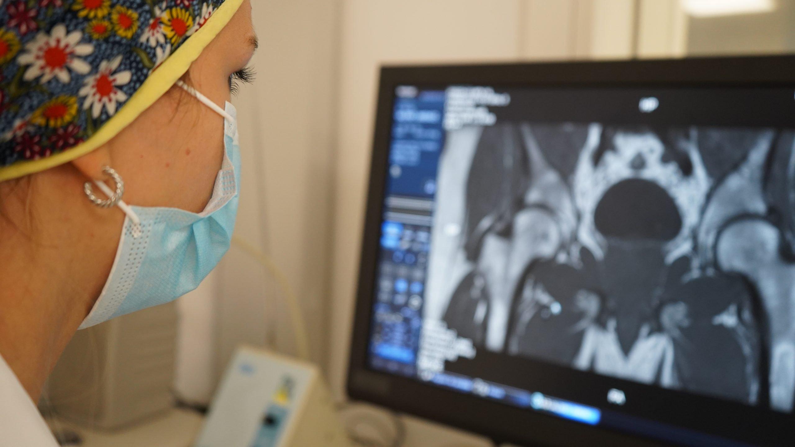 Osteoporosis IMSKE